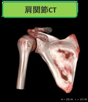 肩関節CT